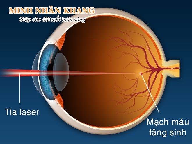 Chiếu tia laser là một trong 5 cách chữa bệnh thoái hóa điểm vàng hiện nay